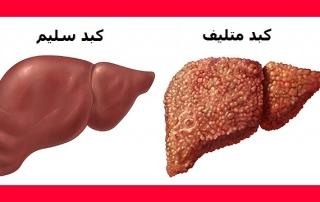 أضرار الشاي الأخضر على الكبد